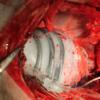 Este robot blando ayuda al latido del corazón